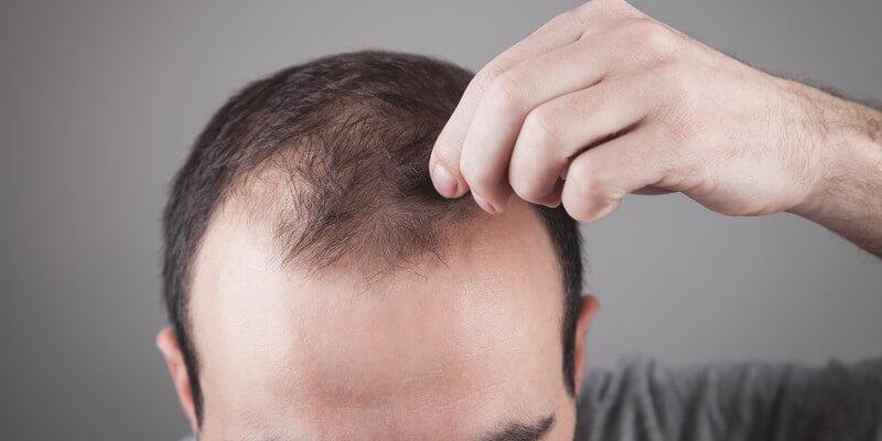 Homme qui perd ses cheveux